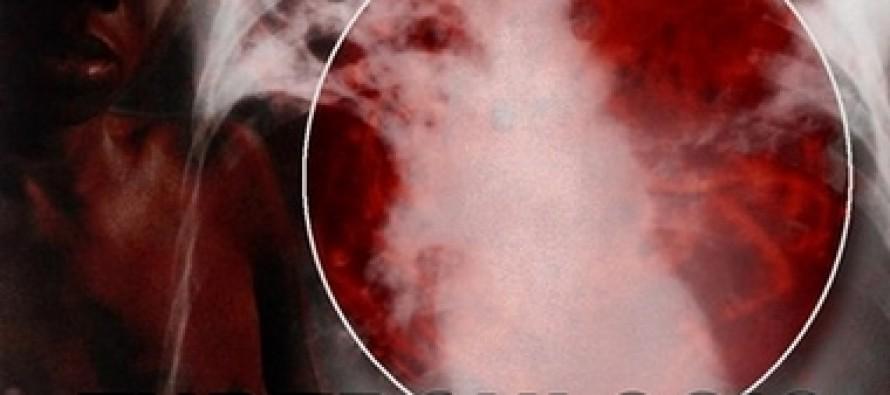 10,500 people die from tuberculosis every year in Afghanistan