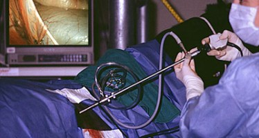 Isteqlal Hospital in Kabul city now offers laparoscopic surgery