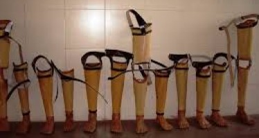 India donates prosthetic legs to 1000 people in Afghanistan