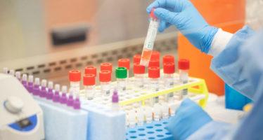 Afghan Government Provides 50,000 Testing Kits For Coronavirus
